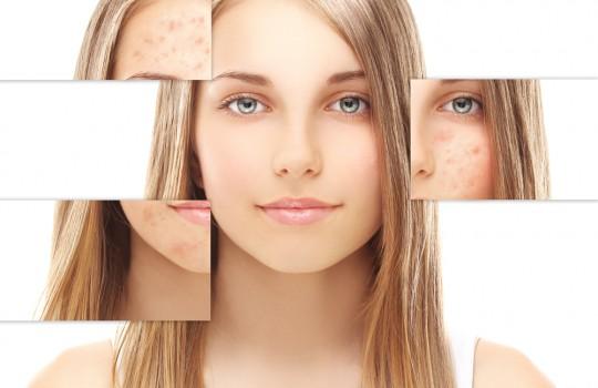 Kompleksinė valomoji procedūra problematiškai odai